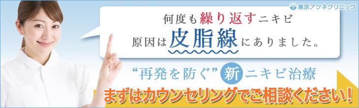 東京アクネクリニック:何度も繰り返すニキビ、原因は皮脂腺にありました。