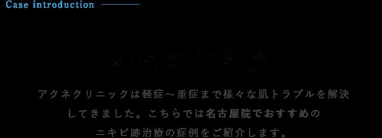 <症例のご紹介>アクネクリニックは軽症~重症まで様々な肌トラブルを解決してきました。こちらでは名古屋院でおすすめのニキビ跡治療の症例をご紹介します。